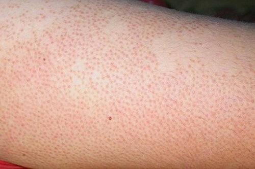 Viêm nang lông là một trong những vấn đề về da gây mất thẩm mỹ vẻ ngoài