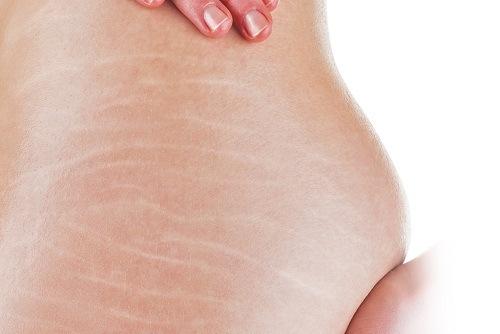 Rạn da tuy không ảnh hưởng đến sức khỏe nhưng làm mất thẩm mỹ làn da