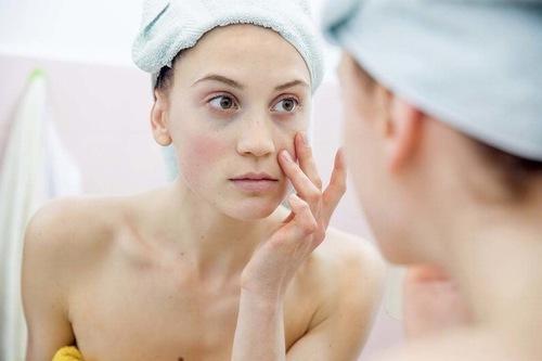 Da nhạy cảm thường mẫn cảm với các phương pháp tắm trắng