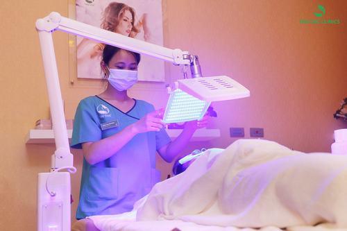 Điều trị mụn bằng công nghệ BlueLight tại Thu Cúc Clinics.
