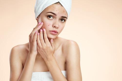 Mụn xuất hiện không ảnh hưởng đến sức khỏe nhưng làm mất thẩm mỹ làn da