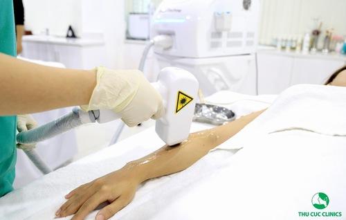 Công nghệ triệt lông Laser Diode đem đến hiệu quả tối ưu cho khách hàng