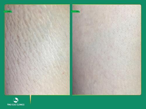 """""""Mình cảm thấy rất bất ngờ vì nhìn thấy kết quả cải thiện rõ rệt với da ở vùng bụng, đùi mịn màng, đều màu hơn chỉ sau 1 liệu trình trị rạn""""."""