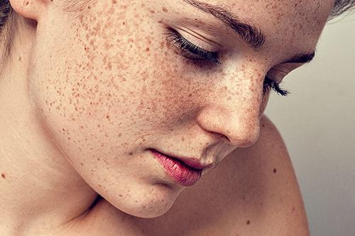 Sự xuất hiện và tăng sinh sắc tố melanin dưới da khiến nhiều chị em mất tự tin