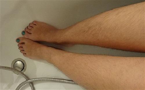 Lông chân rậm rạp làm mất thẩm mỹ làn da của chị em