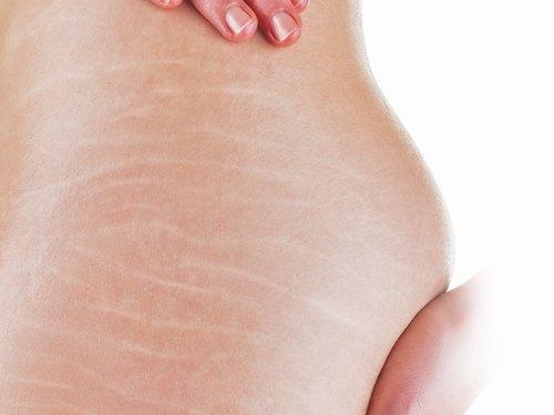 Những vết rạn da thường thấy ở phụ nữ đang mang thai.