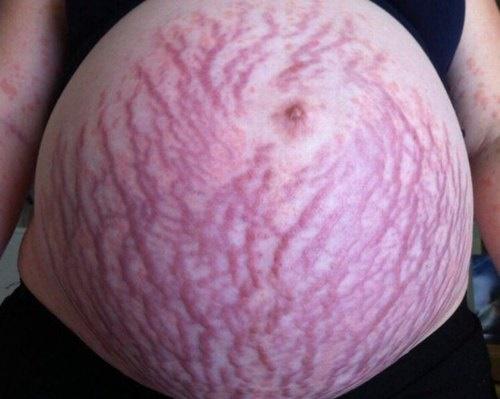 Mới đây hình ảnh bụng rạn khi mang thai của cô Izaiah sống tại Úc đã khiến nhiều người phải xót xa bởi chúng đi kèm với những cơn đau khủng khiếp.