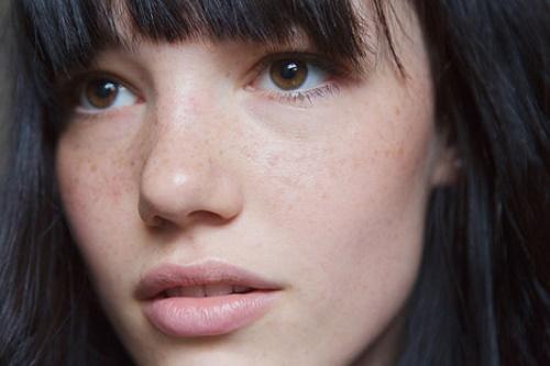 Nám là tình trạng thẩm mỹ da khá phổ biến và không dễ dàng có thể điều trị