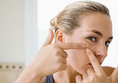 Nhiều người có thói quen nặn mụn đầu đen.