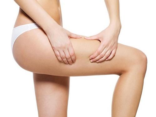 Vết rạn thường xuất hiện tại đùi, bụng, mông do thay đổi thể chất đột ngột