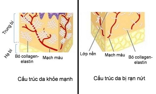 Rạn da hình thành khi các sợi cấu trúc đứt gãy.