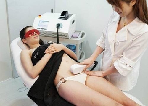"""Triệt lông vùng bikini bằng tia laser là dịch vụ """"HOT"""" vào mỗi thời điểm hè sang."""