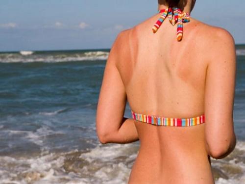 Cháy nắng là tình trạng thẩm mỹ da thường gặp trong mùa hè