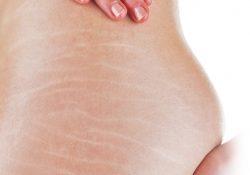 Bị rạn da ở đùi và mông phải làm sao?