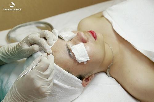Tiếp đó, kỹ thuật viên tiến hành loại bỏ cồi mụn bằng thiết bị y tế vô khuẩn, không gây đau và đảm bảo an toàn
