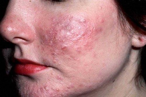 Tình trạng mụn bọc gây nhiều cảm giác khó chịu và để lại nhiều tổn thương cho da.