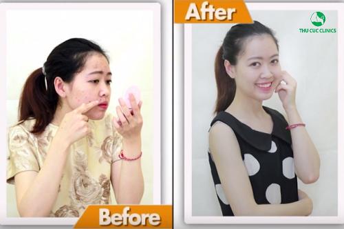 Thu Huệ (25 tuổi, Hà Nội) trước và sau khi trị mụn bọc tại Thu Cúc Clinics.
