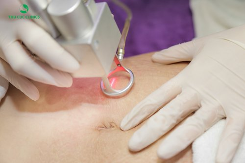 Trị rạn da bằng Laser CO2 kết hợp tế bào gốc tại Thu Cúc Clinics.
