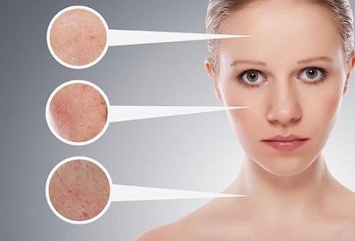 Mụn đầu đen hình thành do thói quen vệ sinh, chăm sóc da không đúng cách.