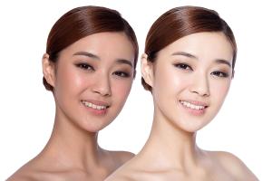 Chăm sóc da sau khi thay da sinh học