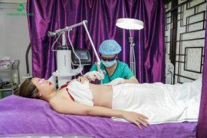 Cách khắc phục rạn da sau sinh