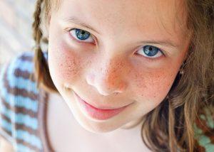 Cách trị tàn nhang cho trẻ em