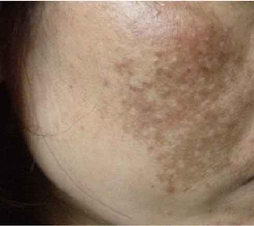 Tàn nhang đồi mồi trên mặt khiến da trở nên xấu xí và già nua.