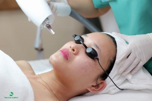 Phương pháp trị tàn nhang bằng công nghệ Laser YAG tại Thu Cúc Clinics.