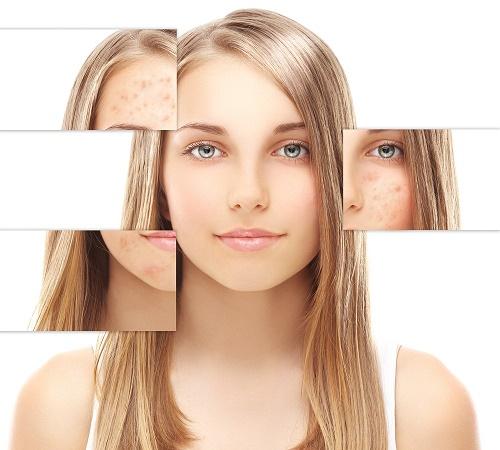 Nám da là bệnh lý khá phổ biến ở phụ nữ.