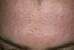 Tổng hợp cách điều trị mụn ẩn dưới da hiệu quả