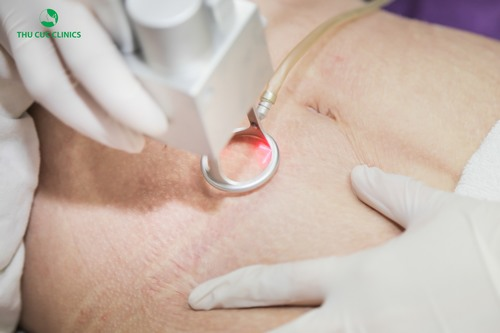 Cận cảnh quá trình điều trị rạn da sau sinh ở Thu Cúc Clinics bằng công nghệ Laser CO2 Fractional