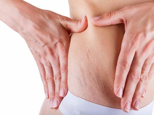 80% phụ nữ gặp phải tình trạng rạn da sau sinh do thời kì mang thai tăng cân mạnh.