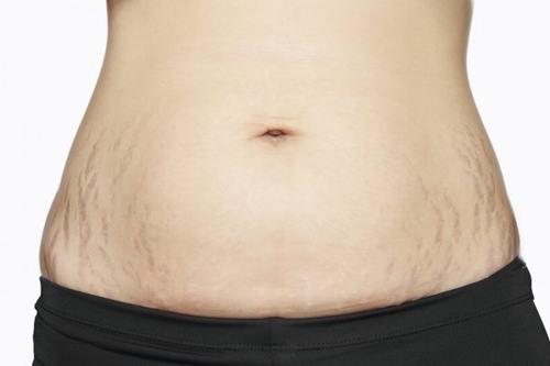 """Sau sinh, phụ nữ không chỉ đối diện với sự thay đổi lớn về vóc dáng mà còn bị """"ám ảnh"""" bởi các vết rạn nứt trên da."""