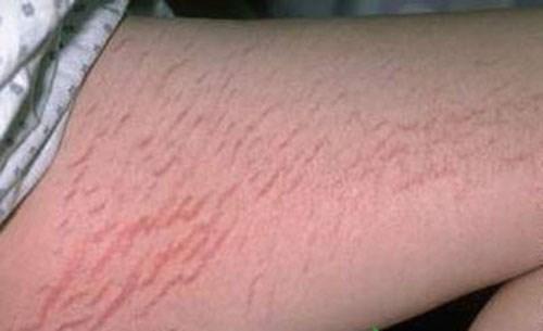 Tuổi dậy thì có rất nhiều nguyên nhân gây nên tình trạng rạn da.