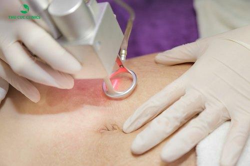 Khách hàng tiến hành điều trị rạn da tại Thu Cúc Clinics.