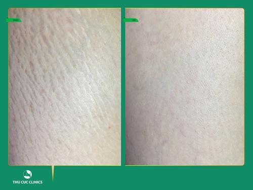 Hình ảnh khách hàng trước và điều trị rạn da tại Thu Cúc Clinics.