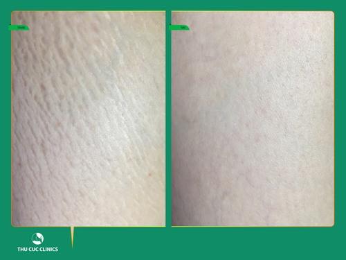 Mọi khách hàng trải nghiệm dịch vụ đều cảm thấy hài lòng bởi chỉ sau 1 liệu trình điều trị vết rạn da bị xóa mờ (Lưu ý: Kết quả có thể khác nhau tùy cơ địa từng người)