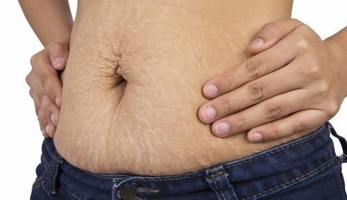 Khi collagen bị đứt gãy, độ đàn hồi da kém, các mô liên kết bị phá vỡ sẽ hình thành các vết rạn trên da.