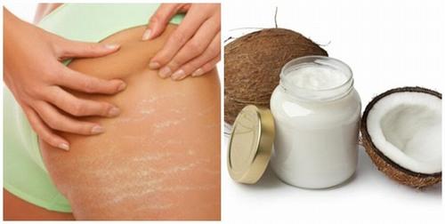 Vào buổi tối, khi tắm xong bạn dùng khăn mềm thấm khô da và thoa 1 lượng dầu dừa vừa đủ lên vùng da bị rạn.