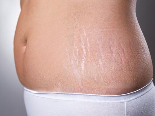 Rạn da sau sinh không phải là hiện tượng hiếm gặp ở phụ nữ