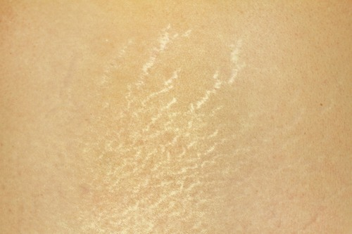 Ở một số người tổ chức dưới da phát triển quá mạnh mà da lại chưa kịp thích nghi tương xứng dẫn tới mô liến kết da bị phá vỡ và hình thành các vết rạn.
