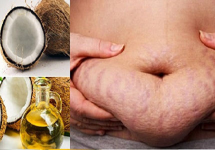 Nguyên liệu tự nhiên không mang lại tác dụng trong việc trị rạn da