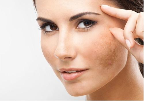 Nám da có rất nhiều loại và có thể xuất hiện ở bất cứ vị trí nào trên mặt nhưng tập trung nhiều nhất ở vùng má với đặc điểm xuất hiện theo mảng sậm màu.