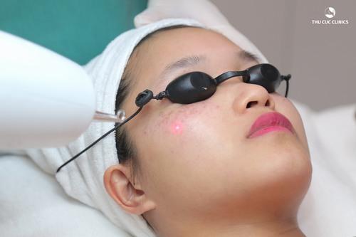 Thu Cúc Clinics đang ứng dụng phương pháp trị nám da bằng Laser YAG, giúp thổi bay nám trên da hiệu quả lên tới 90%.