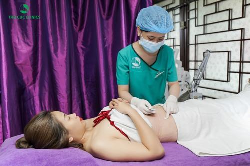 Xóa rạn da sau sinh tại Thu Cúc Clinics được đông đảo phái đẹp hiện đại lựa chọn