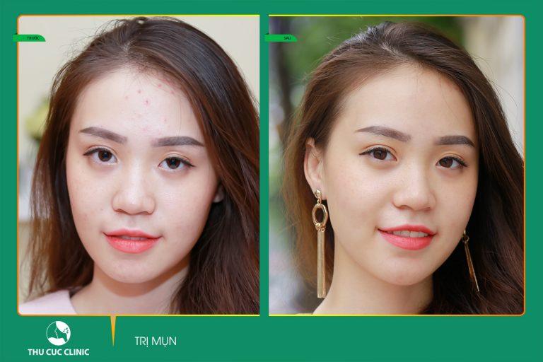 Hotgirl Quỳnh Hoa hài lòng với kết quả sau điều trị mụn bằng công nghệ Blue Light tại Thu Cúc Clinics