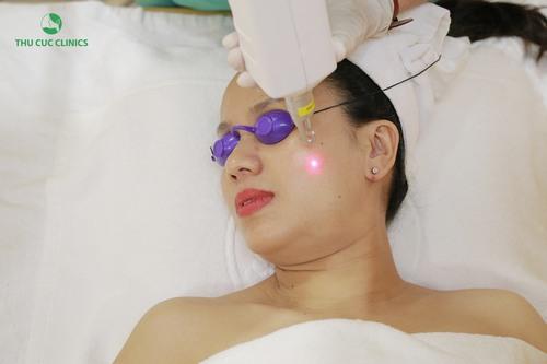 Công nghệ Laser Yag với khả năng tác động sâu sẽ tiêu diệt hắc tố melanin nằm sâu trong lớp trung bì và hạ bì của làn da.