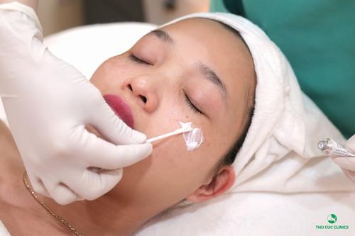 Công nghệ Laser Yag có khả năng tác động sâu vào bên trong da nơi hắc tố melanin hình thành để phá vỡ chúng và đào thải ra ngoài qua hệ bài tiết tự nhiên của cơ thể