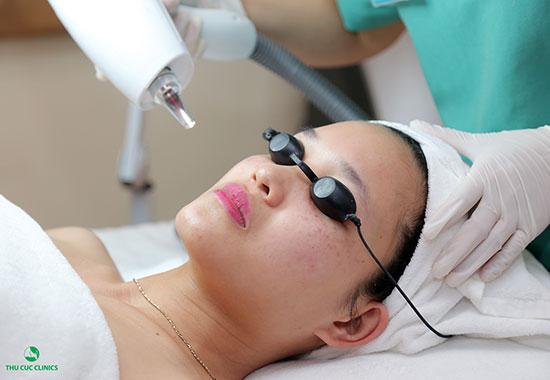 Thu Cúc Clinics đang ứng dụng điều trị nám da bằng công nghệ Laser YAG, giúp loại bỏ nám tối ưu.