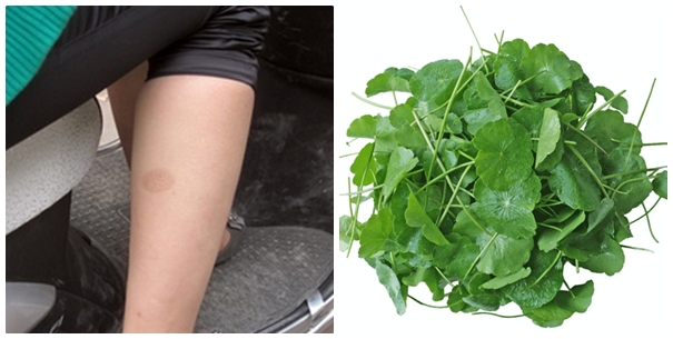 Cuối cùng, rau má cũng là nguyên liệu tự nhiên có tác dụng trị sẹo. Tuy nhiên cần thực hiện kiên trì trong thời gian dài mới đem lại hiệu quả